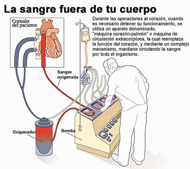Bomba Extracorpórea - Apuntes de Electromedicina Xavier Pardell