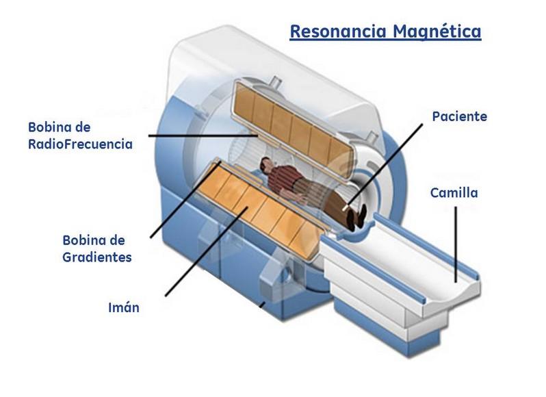cómo se hace la resonancia magnética